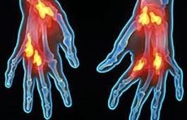 artritis